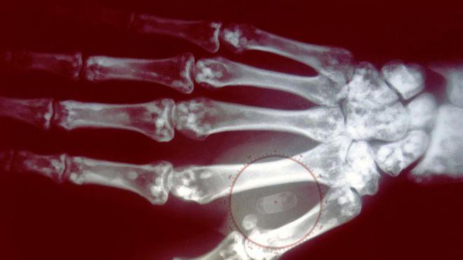 microchip implantado en la mano